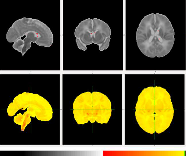 Uncovering Effects Of Preterm Birth On The Developing Brain Using Machine Learning And Mri. Presented at the Neonatal Society 2019 Summer Meeting.